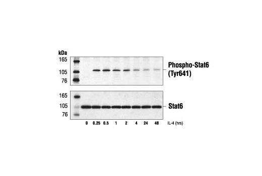 Western blot analysis of extracts from Daudi cells, treated with IL-4 (100 ng/ml) for the indicated times using Phospho-Stat6 (Tyr641) Antibody (upper) or Stat6 antibody (lower).