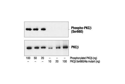 Western blot analysis of Baculovirus expressed PKCβ and PKCβ Ser660/Ala mutant, using Phospho-PKC (pan) (βII Ser660) Antibody (upper) or control PKCβ antibody (lower).