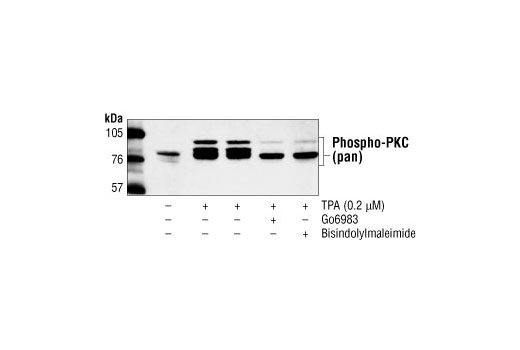 Western blot analysis of extracts from TPA, Go6983 and/or Bisindolylmaleimide treated 293 cells, using Phospho-PKC (pan) (βII Ser660) Antibody.