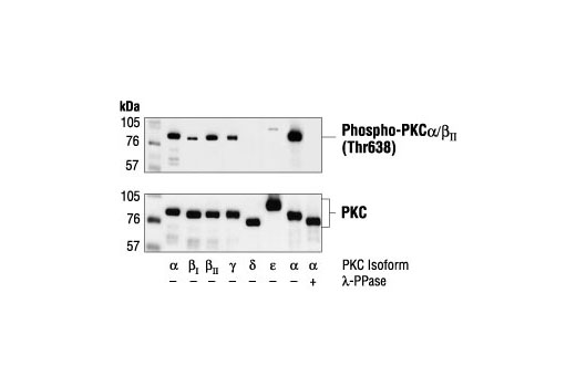 Western blot analysis of Baculovirus-expressed PKC isoforms alpha, beta, gamma, delta and epsilon, untreated or treated with lambda protein phosphatase, using Phospho-PKCalpha/beta II (Thr638/641) Antibody (upper) or PKCalpha, beta, gamma, delta, epsilon antibodies (lower).