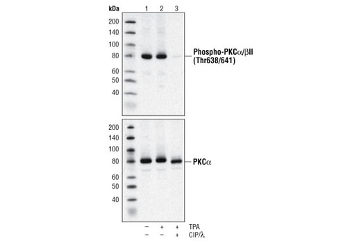 Western blot analysis of extracts from 293 cells, untreated, TPA treated (200 nM), or treated with TPA and CIP and λ phosphatases using Phospho-PKCα/βII (Thr638/641) Antibody or PKCα Antibody #2056.