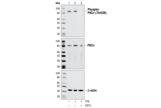 Western blot analysis of extracts from 293 cells, untreated (lane 1), TPA-treated (.2μM for 20 minutes) (lanes 2 & 3), and CIP/λ phosphatase treated (lane 3), using Phospho-PKCθ (Thr538) Antibody #9377, PKCθ Antibody #2059, and β-actin Antibody #4967.