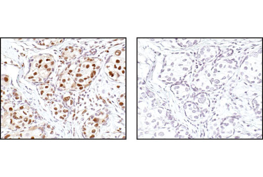 Immunohistochemical analysis of paraffin-embedded human breast carcinoma control (left) or lambda phosphatase-treated (right), using Phospho-Threonine-Prolin Mouse mAb (P-Thr-Pro-101).