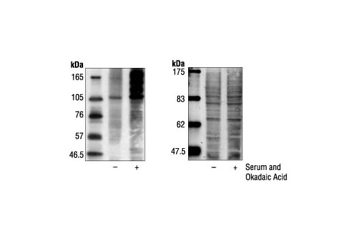 Western blot analysis of extracts from COS cells, untreated or serum and okadaic acid-treated, using Phospho-Threonine-Proline Mouse mAb (P-Thr-Pro-101) (left). Right panel shows total protein staining.