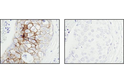 Monoclonal Antibody - Phospho-Tyrosine Mouse mAb (P-Tyr-100) (Biotinylated) - 200 µl #9417