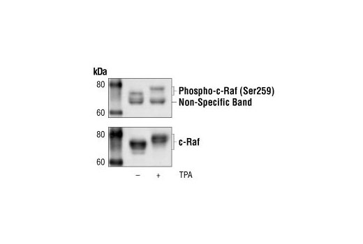 Western blot analysis of extracts from HeLa cells, untreated or TPA-treated, using Phospho-c-Raf (Ser259) Antibody (upper), or a total c-Raf antibody (lower).