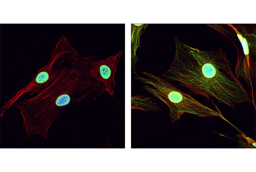 Immunofluorescence Image 1: Acetylated-Lysine Antibody