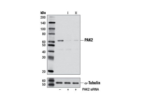 Western blot analysis of extracts from HeLa cells, transfected with 100 nM SignalSilence<sup>®</sup> Control siRNA (Unconjugated) #6568 (-), SignalSilence<sup>®</sup> PAK2 siRNA I #6467 (+) or SignalSilence<sup>®</sup> PAK2 siRNA II (+), using PAK2 (C17A10) Rabbit mAb #2615 and α-Tubulin (11H10) Rabbit mAb #2125. The PAK2 (C17A10) Rabbit mAb confirms silencing of PAK2 expression, while the α-Tubulin (11H10) Rabbit mAb is used as a loading control.