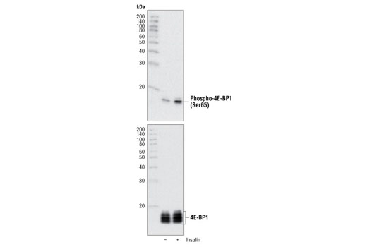 Polyclonal Antibody Immunoprecipitation 4E-BP1