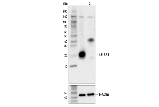 Polyclonal Antibody - 4E-BP1 Antibody - Immunoprecipitation, Western Blotting, UniProt ID Q13541, Entrez ID 1978 #9452 - Translational Control