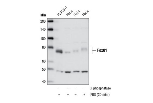 Western blot analysis of extracts from IGROV-1 cells and untreated, λ phosphatase- or FBS-treated (20 min.) HeLa cells using FoxO1 (L27) Antibody.
