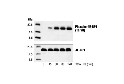 Polyclonal Antibody - Phospho-4E-BP1 (Thr70) Antibody - Immunoprecipitation, Western Blotting, UniProt ID Q13541, Entrez ID 1978 #9455 - Translational Control