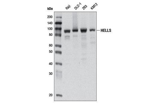 Polyclonal Antibody Heterochromatin Formation