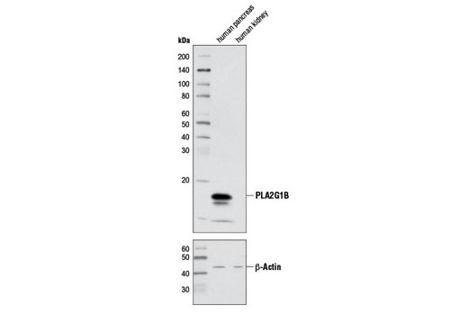 Polyclonal Antibody Regulation of Protein Secretion