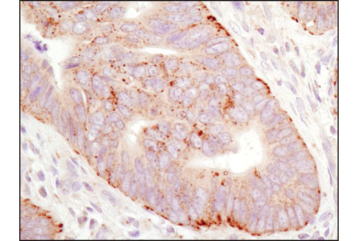 Immunohistochemical analysis of paraffin-embedded human colon carcinoma using LAMTOR1/C11orf59 (D11H6) XP<sup>® </sup>Rabbit mAb.