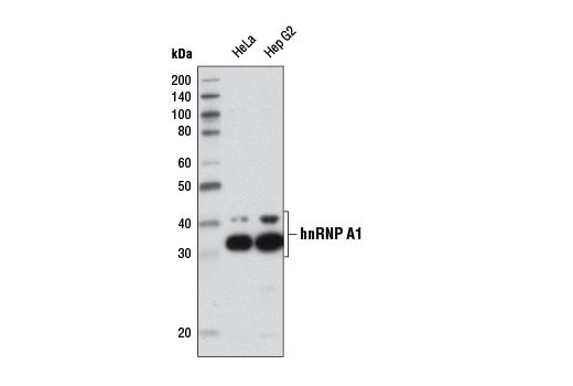 Western blot analysis of extracts from various cell lines using hnRNP A1 (D21H11) Rabbit mAb.