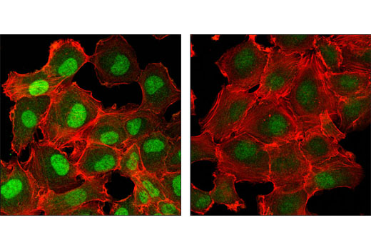 Confocal immunofluorescent analysis of HT-1080 cells, BMP-treated (left) and untreated (right), using Phospho-Smad5 (Ser463/Ser465) (41D10) Rabbit mAb (green). Actin filaments were labeled with DY-554 phalloidin (red).