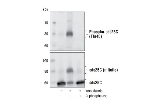 Western Blot analysis of HT29 cell extracts untreated, nocodazole-treated and lambda phosphotase-treated using Phospho-cdc25C (Thr48) (upper), and cdc25C (5H9) Rabbit mAb, #4688 (lower).
