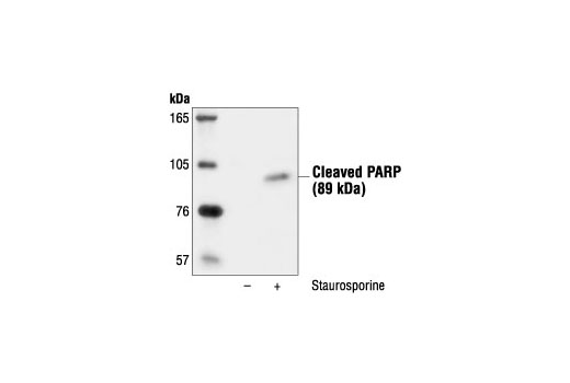 Western blot analysis of C6 cells, untreated or staurosporine-treated (1 µM, 3hrs), using Cleaved PARP (Asp214) Antibody (Rat Specific).