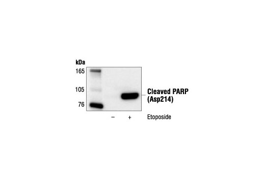 Western blot analysis of extracts from Jurkat cells, untreated or etoposide-treated (25 µM, 5hrs), using Cleaved PARP (Asp214) (19F4) Mouse mAb (Human Specific).