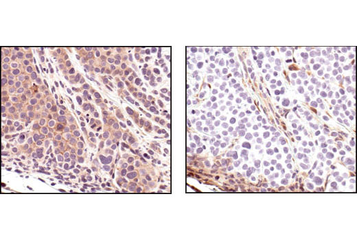 Immunohistochemical analysis of paraffin-embedded MDA-MB-468 xenograft, using Phospho-Akt (Ser473) (736E11) Rabbit mAb (IHC Preferred) (#3787) (left) or PTEN (138G6) Rabbit mAb (right). MDA-MB-468 cells lack PTEN. Note the lack of PTEN staining in the Phospho-Akt positive cells.