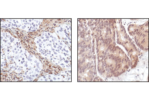 Immunohistochemical analysis of paraffin-embedded human lung carcinoma (left) and prostate carcinoma (right), using PTEN (138G6) Rabbit mAb. Note the stromal cell staining in the PTEN negative lung carcinoma, and the cancer cell staining in the PTEN positive prostate carcinoma.
