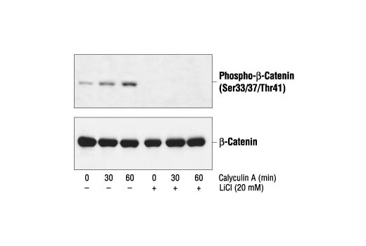 Western blot analysis of extracts from 293 cells, pretreated with 20 mM LiCl for 30 minutes and then with 50 nM calyculin A, using Phospho-β-Catenin (Ser33/37/Thr41) Antibody (upper) or β-Catenin Antibody #9562 (lower).