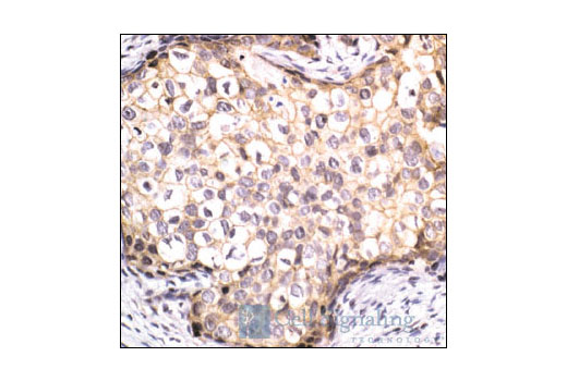 Immunohistochemical analysis of paraffin-embedded human breast carcinoma using beta-Catenin Antibody.