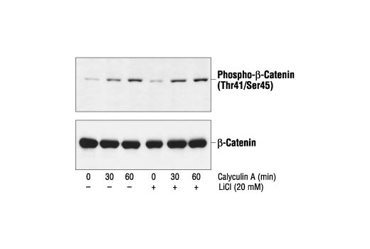 Western blot analysis of extracts from 293 cells pretreated with 20 mM LiCl for 30 minutes and then with 50 nM calyculin A, using Phospho-β-Catenin (Thr41/Ser45) Antibody (upper) or β-Catenin Antibody #9562 (lower).