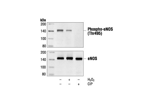 Western blot analysis of extracts from porcine aortic endothelial cells (PAECs), 3 days post-confluence, untreated, H2O2-treated (0.3 mM for 30 minutes) or calf intestinal alkaline phosphatase (CIP)-treated as indicated, using Phospho-eNOS (Thr495) Antibody (upper) or control eNOS antibody (lower).
