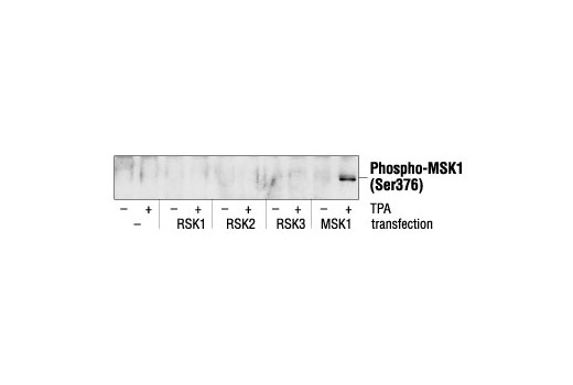 Western blot analysis of extracts from RSK1, RSK2, RSK3 or MSK1 transfected 293 cells, untreated or TPA-treated (200 nM), using Phospho-MSK1 (Ser376) Antibody.