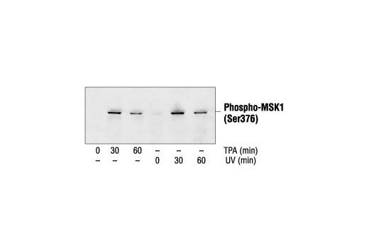 Western blot analysis of extracts from 293 cells, untreated, TPA-treated or UV-treated, using Phospho-MSK1 (Ser376) Antibody.