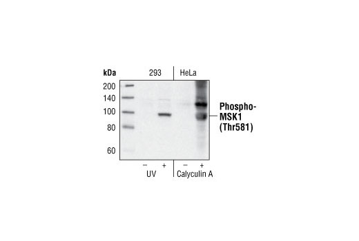 Western blot analysis of extracts from 293 cells untreated or treated with UV and HeLa cells untreated or treated with calyculin A, using Phospho-MSK1 (Thr581) Antibody.