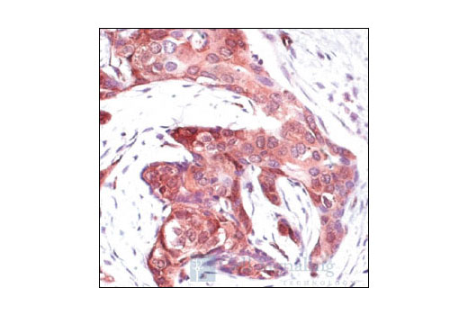 Immunohistochemical analysis of paraffin-embedded human breast carcinoma, showing staining of proteins containing phosphorylated 14-3-3 binding motifs, using Phospho-(Ser) 14-3-3 Binding Motif Antibody.