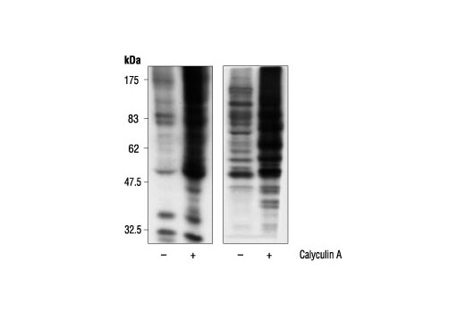 Western blot analysis of extracts from A431 cells, untreated or calyculin A-treated, using Phospho-(Ser) 14-3-3 Binding Motif (4E2) Mouse mAb (left) or Phospho-(Ser) 14-3-3 Binding Motif Antibody #9601 (right).