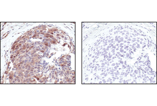 Immunohistochemical analysis of paraffin-embedded human breast carcinoma control (left) or lambda phosphatase-treated (right), using Phospho-(Ser/Thr) Akt Substrate Antibody.