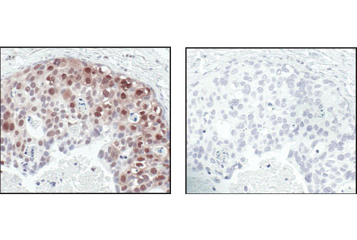 Immunohistochemical analysis of paraffin-embedded human breast carcinoma control (left) or lambda phosphatase-treated (right), using Phospho-Akt Substrate (RXXS*/T*) (110B7E) Rabbit mAb.