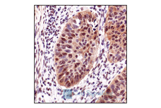 Immunohistochemical analysis of paraffin-embedded lung carcinoma, using Phospho-Akt Substrate (RXXS*/T*) (110B7E) Rabbit mAb.