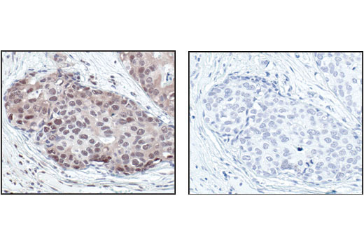 Immunohistochemical analysis of paraffin-embedded human breast carcinoma control (left) or lambda phosphatase-treated (right), using Phsopho-(Ser/Thr) PKA Substrate Antibody.