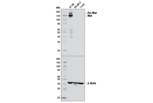 Western blot analysis of extracts from HT-29 (Met+), SK-BR-3 (Met-), and T-47D (Met-) cells using Met (D1C2) XP<sup>®</sup> Rabbit mAb (upper) or β-Actin Antibody #4967 (lower).