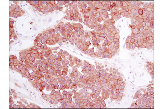 Immunohistochemical analysis of paraffin-embedded human hepatocellular carcinoma using Met (D1C2) XP<sup>®</sup> Rabbit mAb.