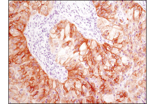 Immunohistochemical analysis of paraffin-embedded human metastatic lung carcinoma using Met (D1C2) XP<sup>®</sup> Rabbit mAb.