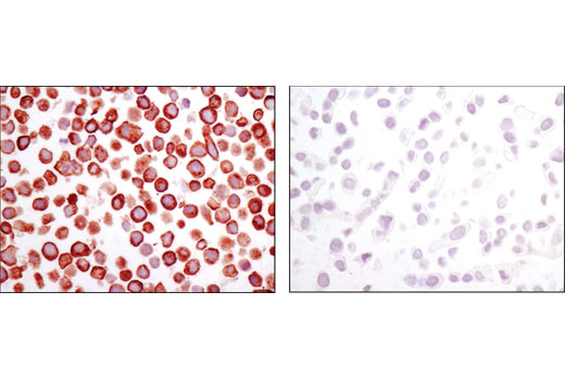 Immunohistochemical analysis of paraffin-embedded cell pellets, MKN-45 (left) and T-47D (right), using Met (D1C2) XP<sup>®</sup> Rabbit mAb.