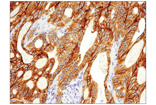 Immunohistochemical analysis of paraffin-embedded human colon adenocarcinoma using Met (D1C2) XP® Rabbit mAb performed on the Leica® Bond™ Rx.