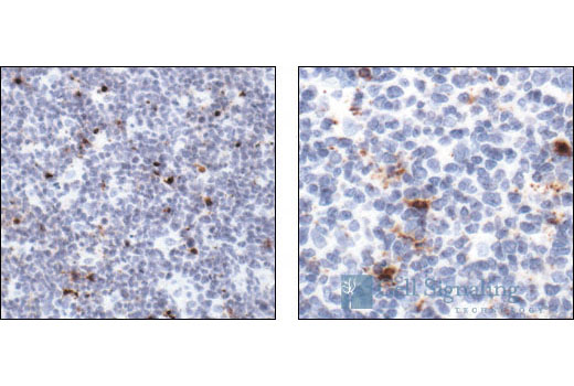 Immunohistochemical analysis of paraffin-embedded human tonsil, showing cytoplasmic and perinuclear localization in apoptotic cells (low and high magnification), using Cleaved Caspase-3 (Asp175) Antibody.