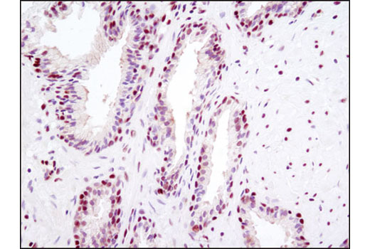 Immunohistochemical analysis of paraffin-embedded human prostate carcioma using HMGB1 (D3E5) Rabbit mAb.