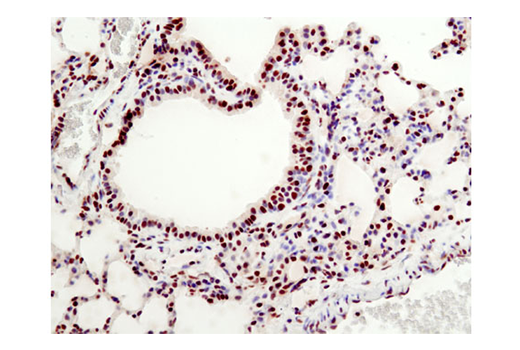 Immunohistochemical analysis of paraffin-embedded mouse lung using HMGB1 (D3E5) Rabbit mAb.