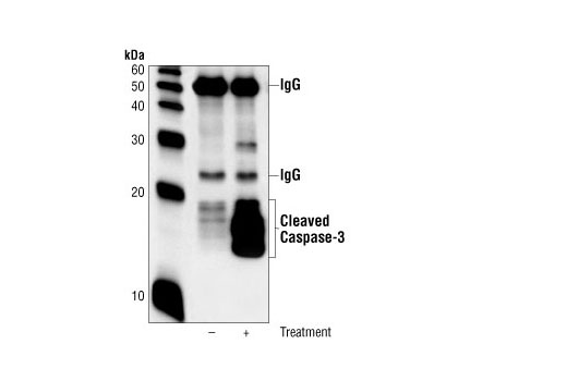 Immunoprecipitation of extracts from Jurkat cells, untreated or etoposide-treated (25uM, 5hrs), using Cleaved Caspase-3 (Asp175) (5A1E) Rabbit mAb. Western blot was performed using the same antibody.
