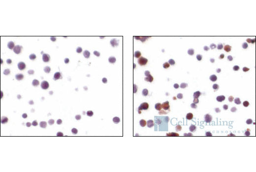 Immunohistochemical analysis using Cleaved Caspase-3 (Asp175) (5A1E) Rabbit mAb on SignalSlide® Cleaved Caspase-3 IHC Controls #8104 (paraffin-embedded Jurkat cells, untreated (left) or etoposide-treated (right)).