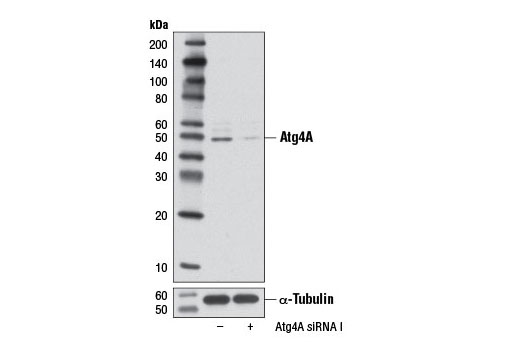 Western blot analysis of extracts from HeLa cells, transfected with 100 nM SignalSilence<sup>®</sup> Control siRNA (Unconjugated) #6568 (-) or SignalSilence<sup>®</sup> Atg4A siRNA I #6427 (+), using Atg4A (D62C10) Rabbit mAb (upper) or α-Tubulin (11H10) Rabbit mAb #2125 (lower). The Atg4A (D62C10) Rabbit mAb confirms silencing of Atg4A expression, while the α-Tubulin (11H10) Rabbit mAb is used as a loading control.